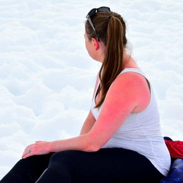 The Time I Got Sunburn in Antarctica: Watch Out for the Reflection off the Ice!